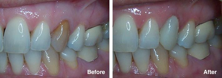 Dentist Woodbridge VA