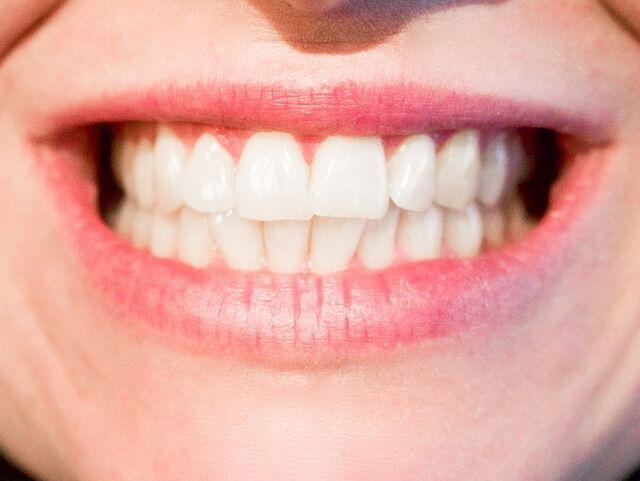 Woodbridge VA Dentist   The Dangers of Grinding